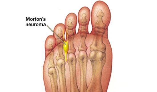 toe pain
