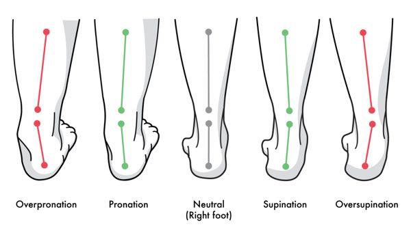 pronated feet